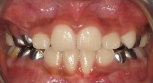 gums and orthodontics after treatment